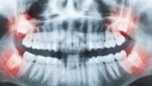 آیا اشعه ایکس دندان در هنگام بارداری مضر است