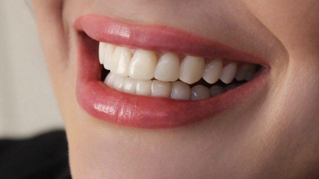 لمینت دندان پر شده