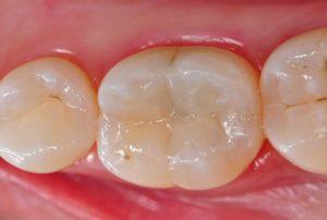 لمینت دندان چیست