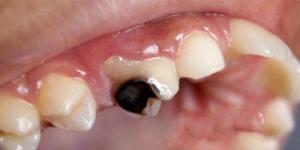 عوامل بروز دنداندرد