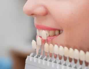نرخ قیمت لمینت دندان