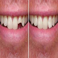 ترمیم و زیبایی دندان جلو