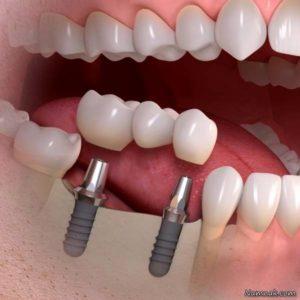 هزینه ترمیم و زیبایی دندان-2