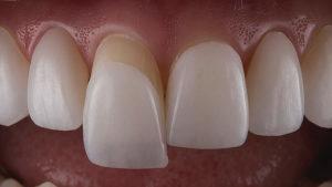 قیمت لمینت برای دندان