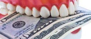 قیمت لمینت دندان به روز