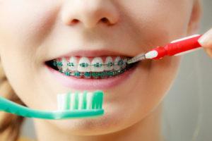 ترمیم دندان پوسیده-2