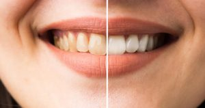 بلیچینگ دندان با بیمه-2