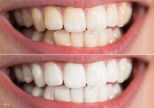 بلیچینگ دندان بهتر است یا کامپوزیت-52