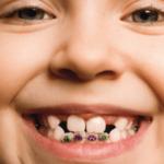 دندانپزشکی کودکان-1
