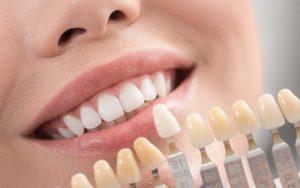 لمینت دندان جلو-2
