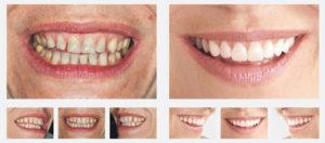 هزینه بلیچینگ دندان-2