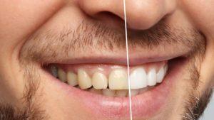 بلیچینگ دندانپزشکی-2