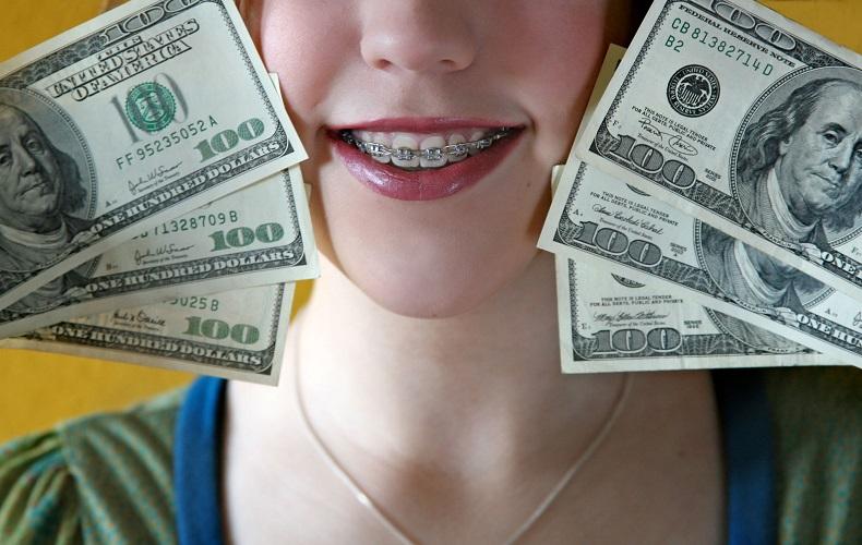 قیمت لمینت دندان ۹۹-1
