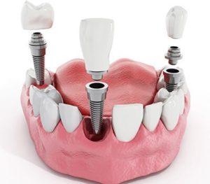 روش های ترمیم و زیبایی دندان-2