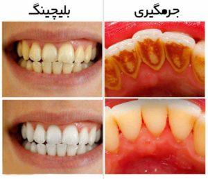 بلیچینگ دندان در کرج-2